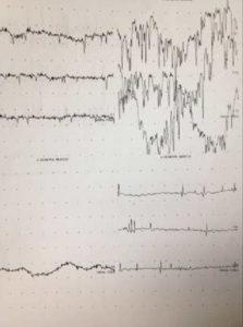 Sciatic Nerve Lesion Graph
